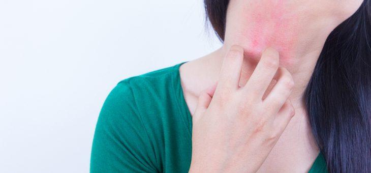 Нейродермит, причины и симптомы. Как лечить нейродермит?
