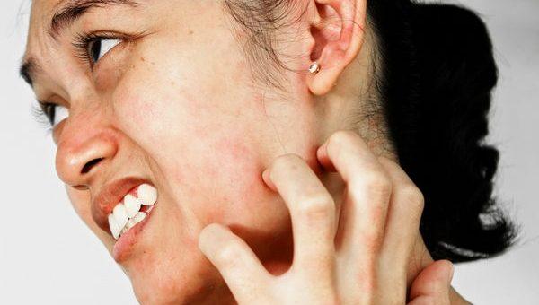 Аллергия на нервной почве. Как бороться с нервной аллергией?