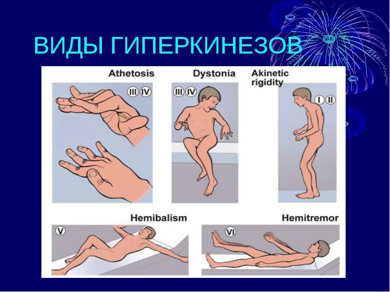 Виды гиперкинеза, лечение заболевания у детей