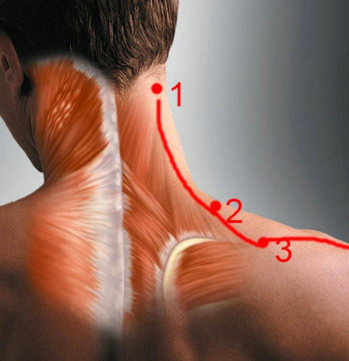 Как снять спазм шейных мышц?