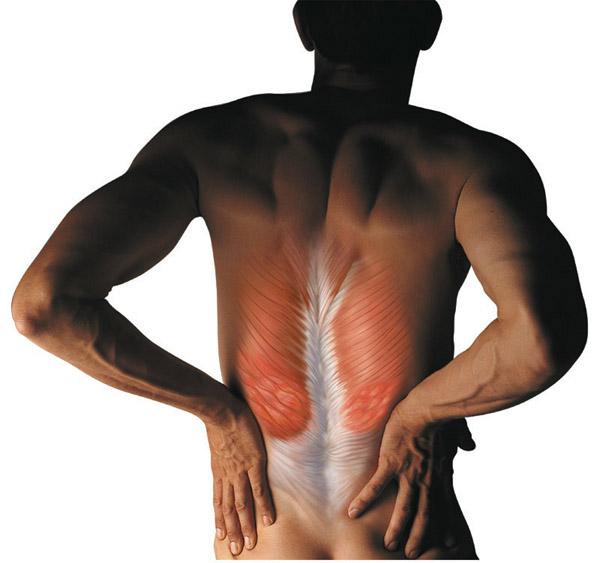 Спазм мышц спины, причины и как его снять?