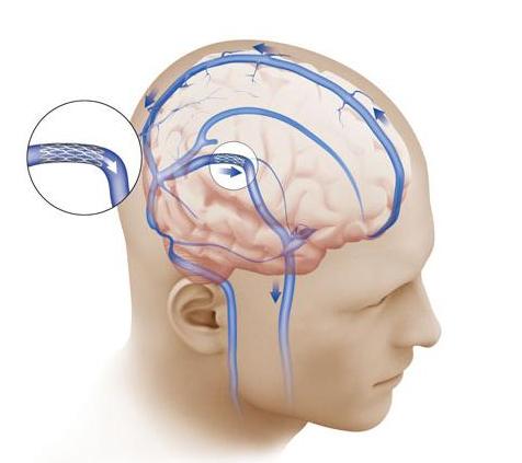 Причины и признаки высокого внутричерепного давления
